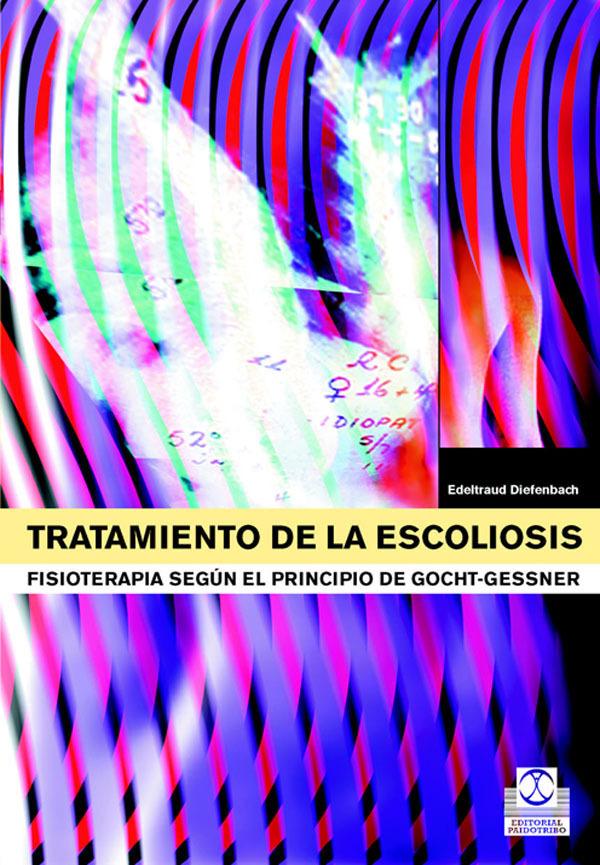 TRATAMIENTO DE LA ESCOLIOSIS. FISIOTERAPIA SEGÚN EL PRINCIPIO DE GOCHT