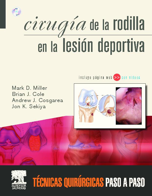 CIRUGÍA DE LA RODILLA EN LA LESIÓN DEPORTIVA LIBRO+WEB+DVD-ROM